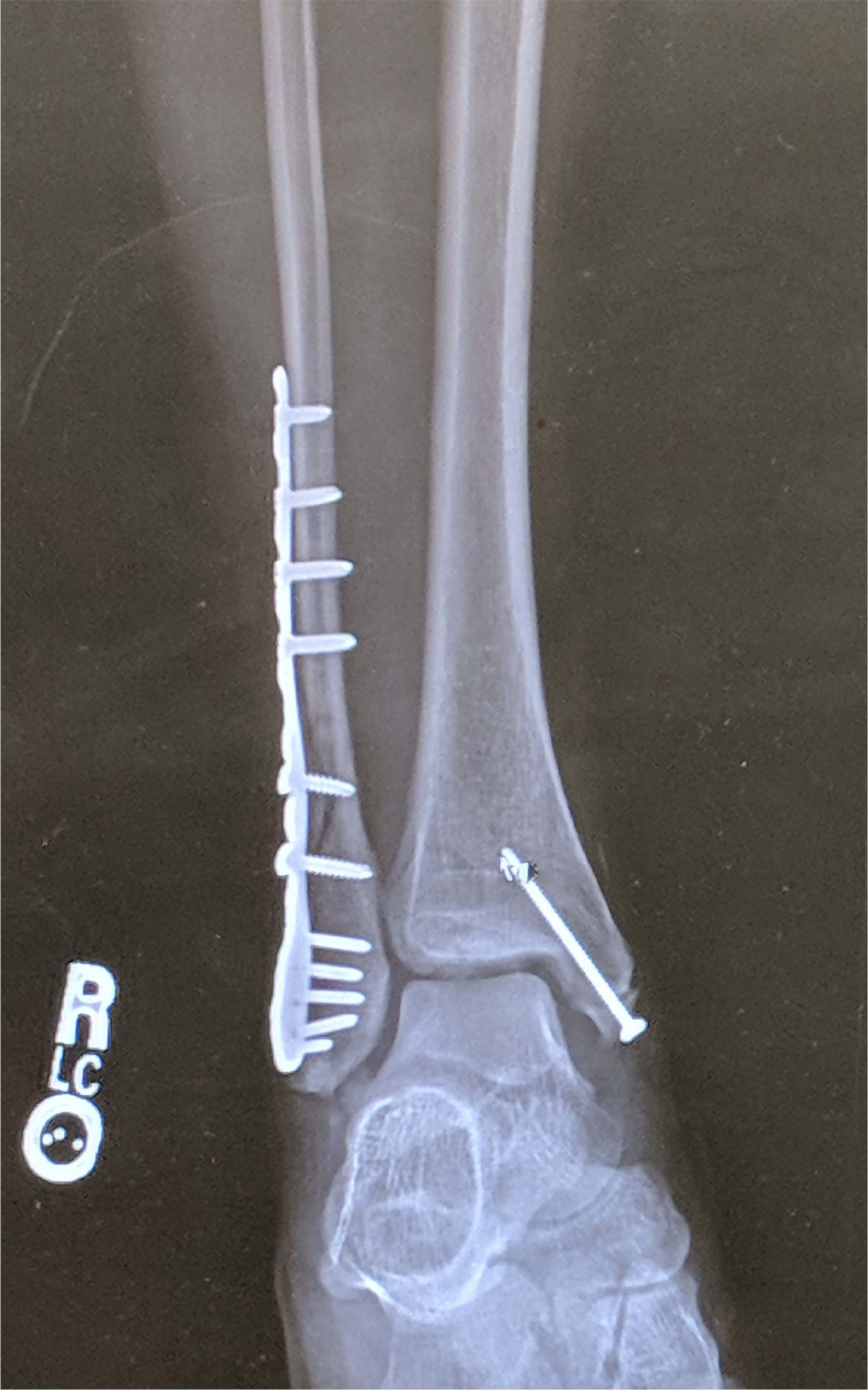 Ankle x-ray with metal hardware